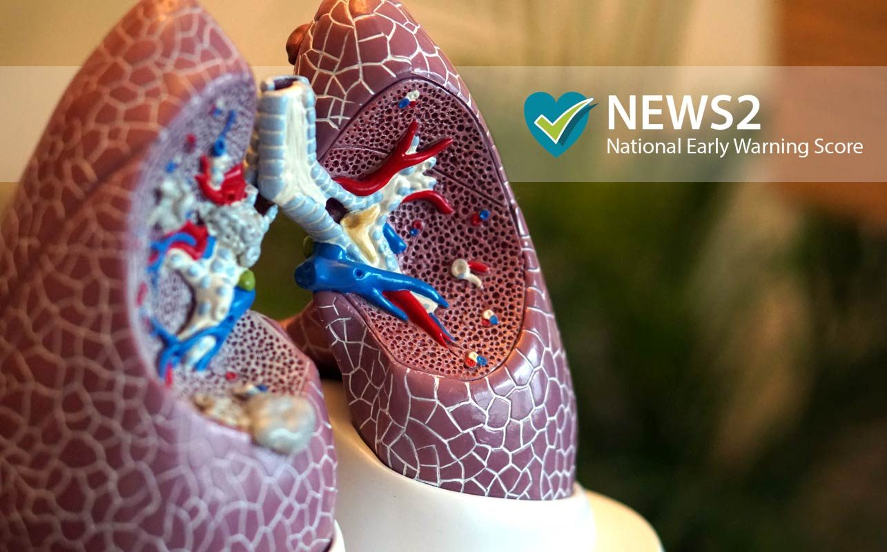 Positive  findings for NEWS2 usage with COPD patients